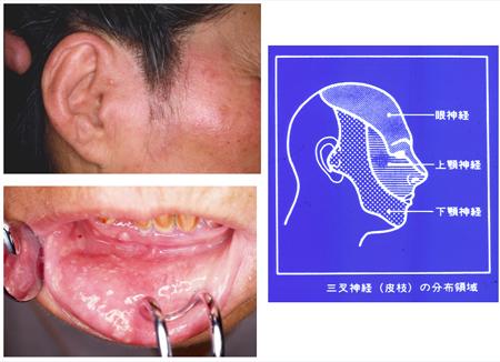 水痘・帯状疱疹ウイルス