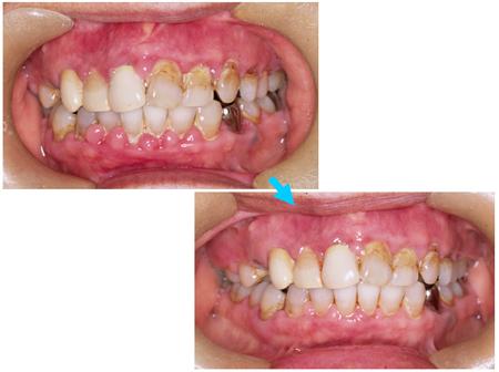 薬剤性歯肉増殖症