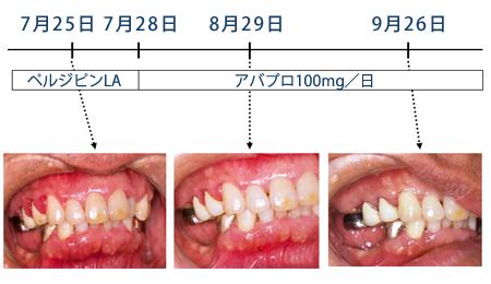 薬剤性歯肉増殖症 図